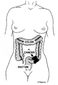 colon cancer body