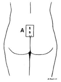 pilonidal1