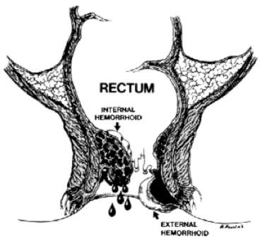 Question External bump near anus bleeds with you